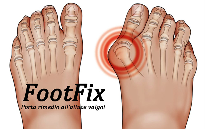 Foot Fix tutore