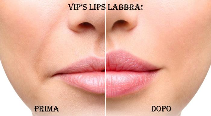 Risultati di Vip's Lips